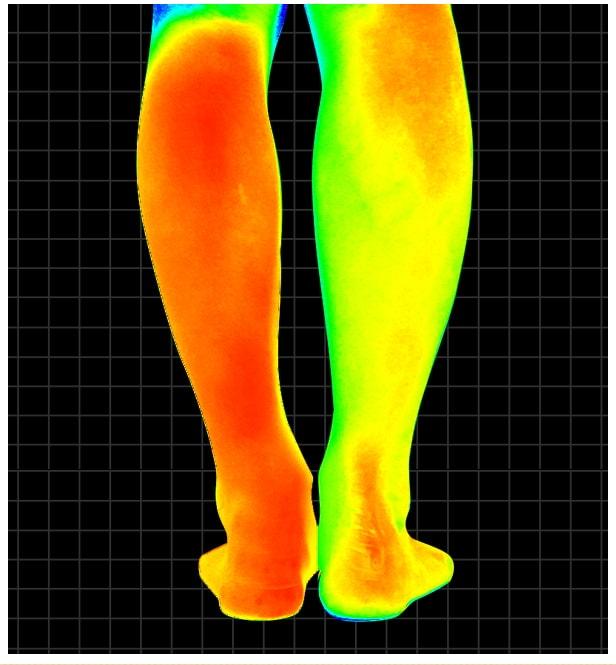 ビキャクイーンのサーモグラフィー画像