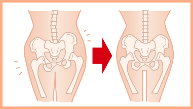 パエンナスリムの骨盤への効果の画像