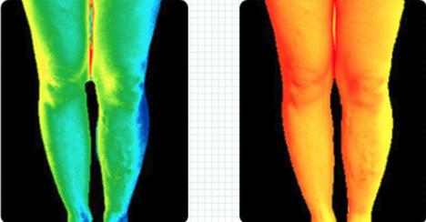 プロフェッショナルスレンダーメイクレギンスのサーモグラフィ画像